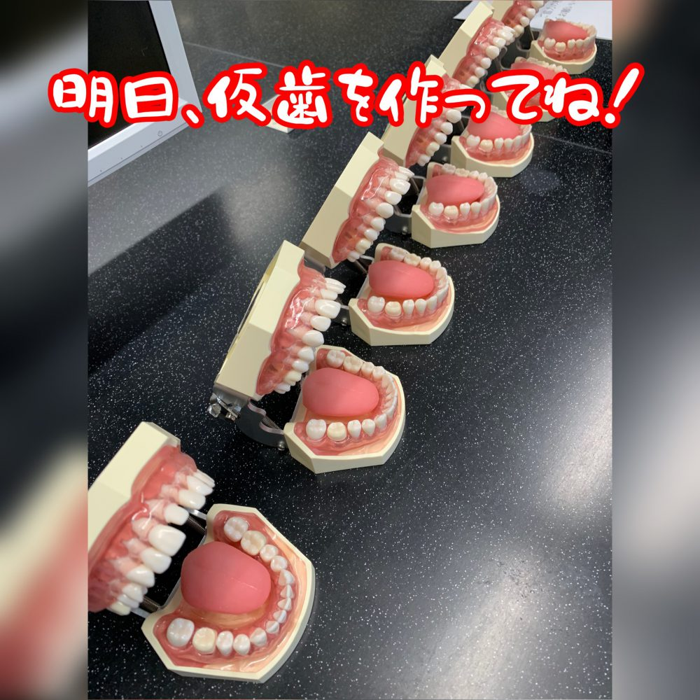 仮歯を作ってね!
