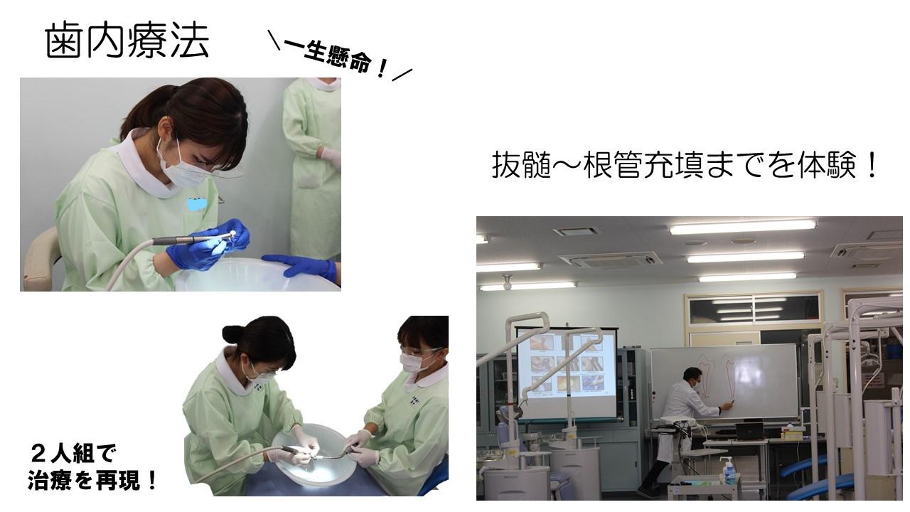 歯内療法の実習でした!